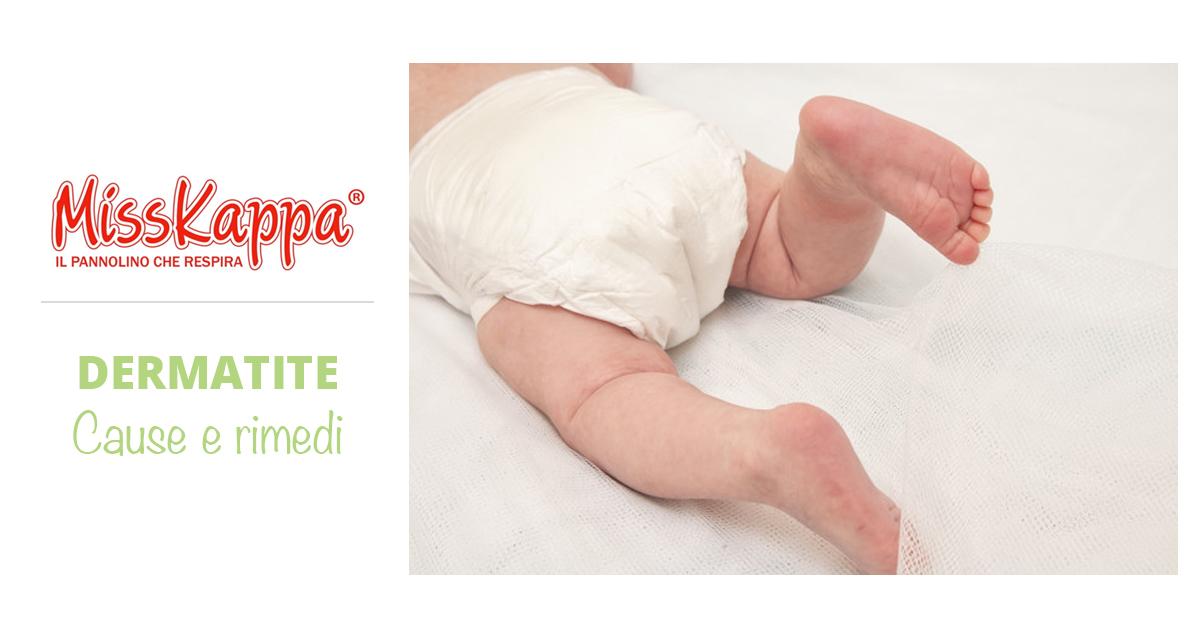 Dermatite da pannolino nel neonato: cause, prevenzione e rimedi